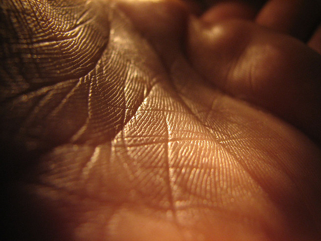 This photo shows the palm of a hand
